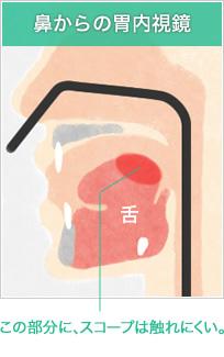 鼻からの胃内視鏡